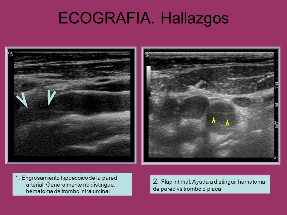 ECOGRAFIA. Hallazgos 1. Engrosamiento hipoecoico de la pared arterial. Generalmente no distingue: hematoma de trombo intraluminal.