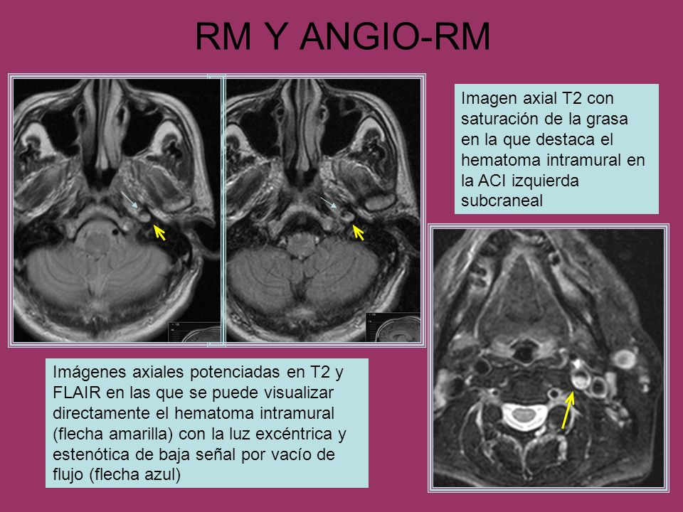 RM Y ANGIO-RM Imagen axial T2 con saturación de la grasa en la que destaca el hematoma intramural en la ACI izquierda subcraneal.