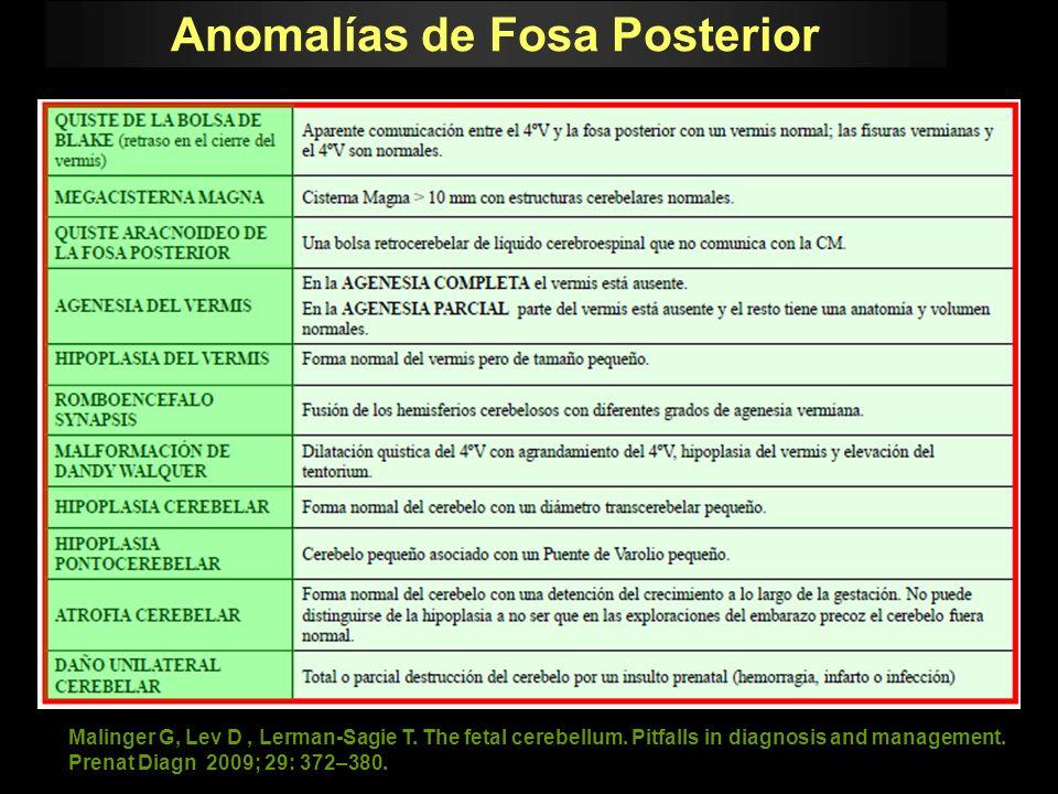 Anomalías de Fosa Posterior