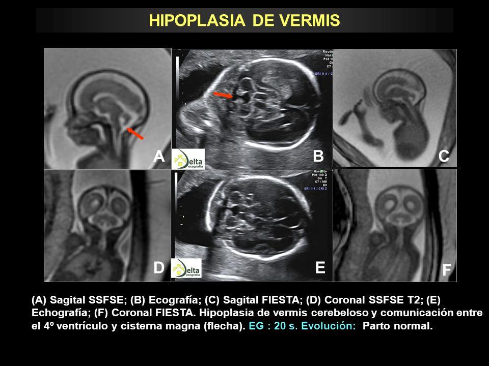 HIPOPLASIA DE VERMIS A B D E C F