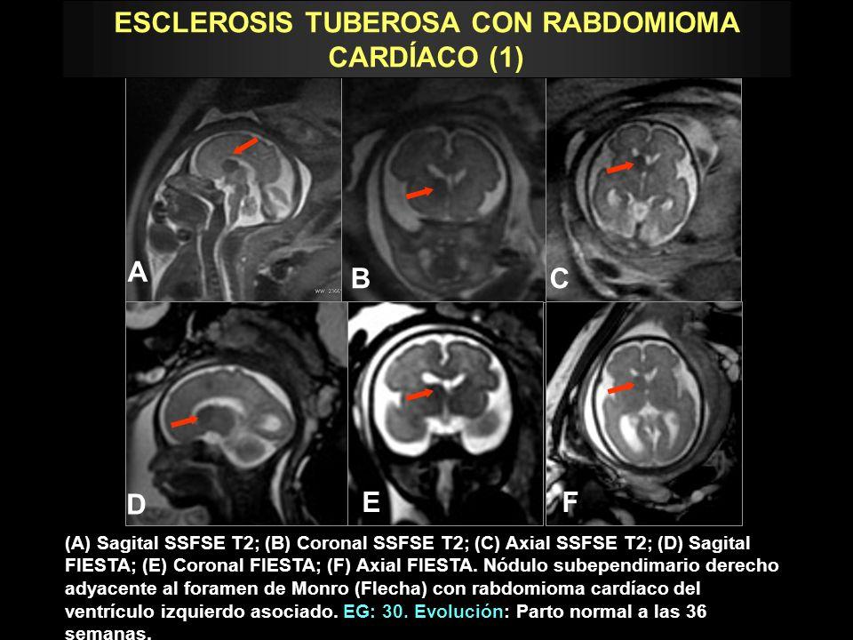 ESCLEROSIS TUBEROSA CON RABDOMIOMA CARDÍACO (1)