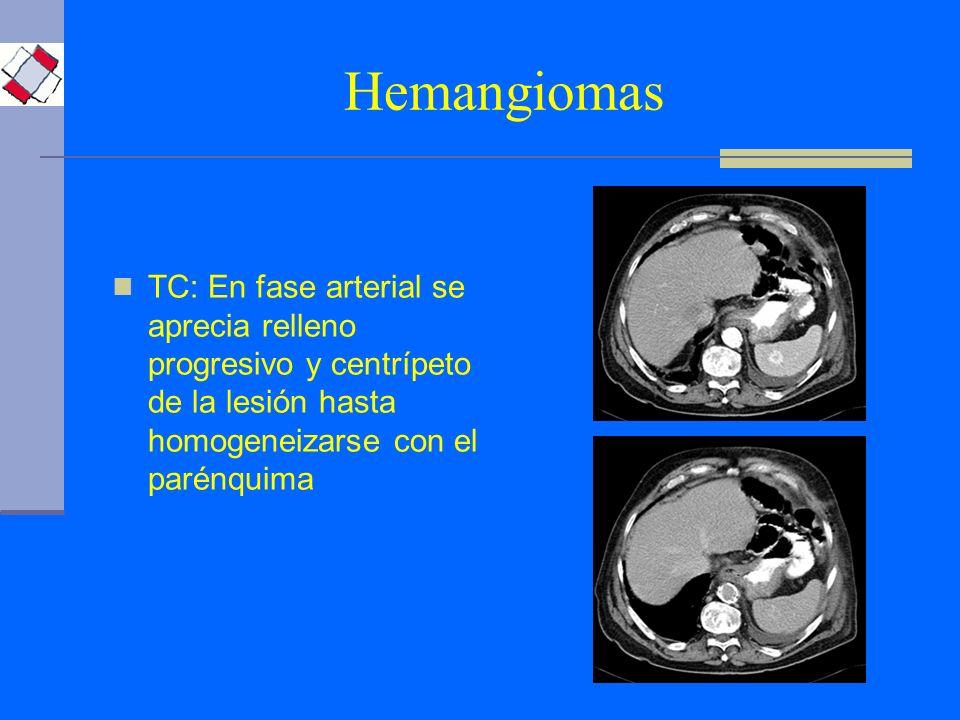 Hemangiomas TC: En fase arterial se aprecia relleno progresivo y centrípeto de la lesión hasta homogeneizarse con el parénquima.