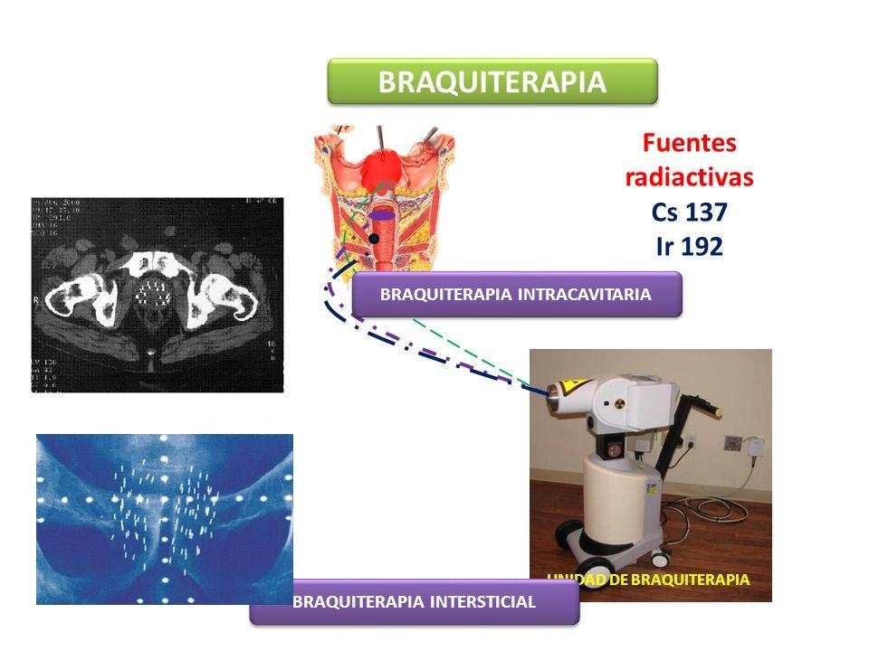 BRAQUITERAPIA Fuentes radiactivas Cs 137 Ir 192