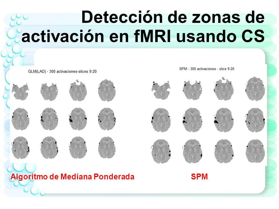 Detección de zonas de activación en fMRI usando CS
