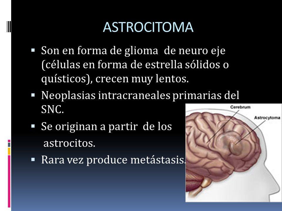 ASTROCITOMA Son en forma de glioma de neuro eje (células en forma de estrella sólidos o quísticos), crecen muy lentos.