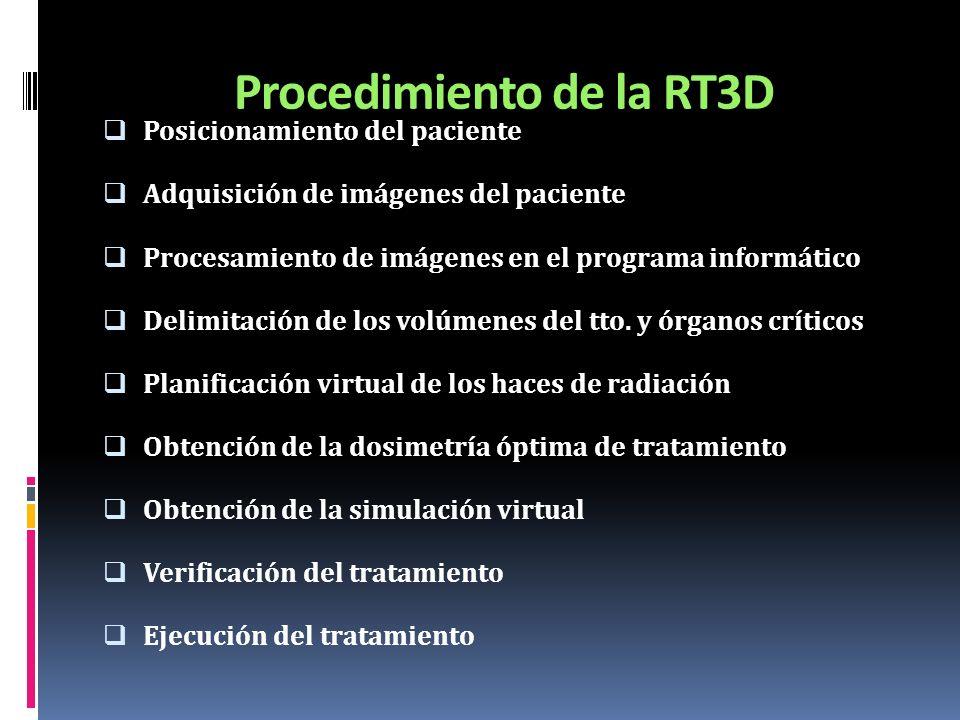 Procedimiento de la RT3D
