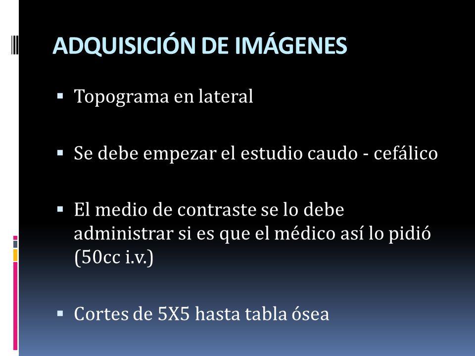 ADQUISICIÓN DE IMÁGENES