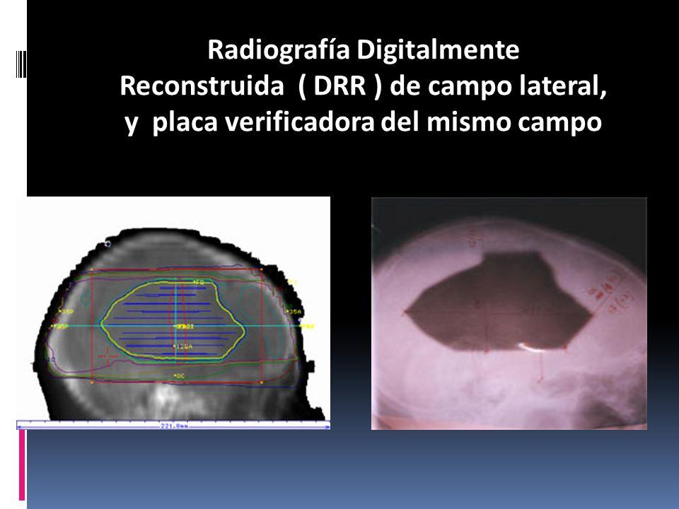 Radiografía Digitalmente Reconstruida ( DRR ) de campo lateral, y placa verificadora del mismo campo
