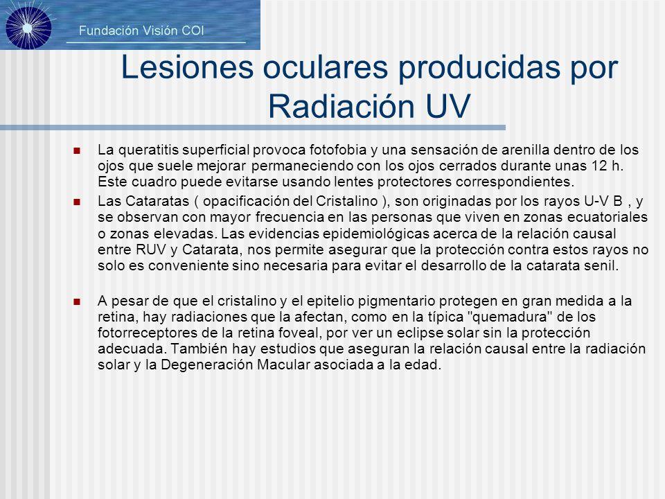 Lesiones oculares producidas por Radiación UV