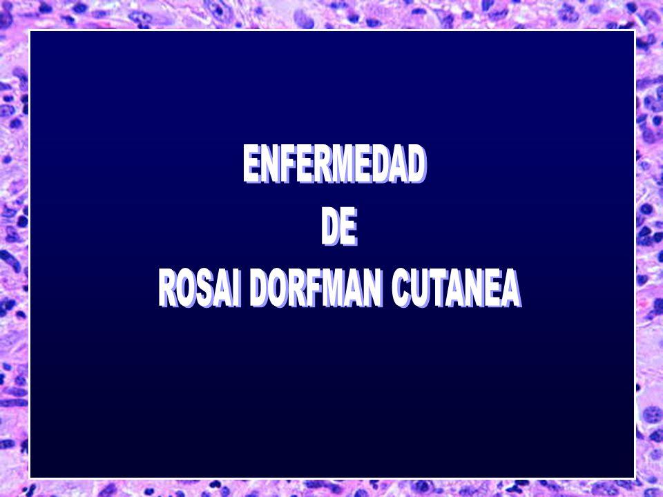 ENFERMEDAD DE ROSAI DORFMAN CUTANEA
