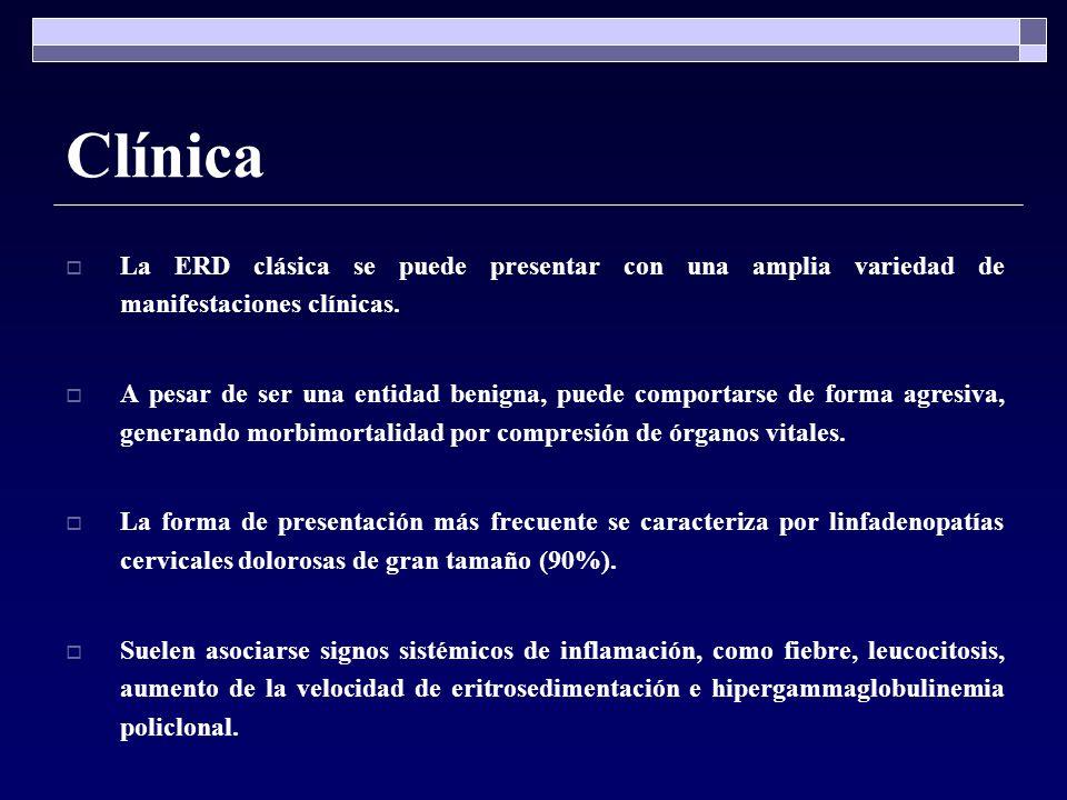 Clínica La ERD clásica se puede presentar con una amplia variedad de manifestaciones clínicas.