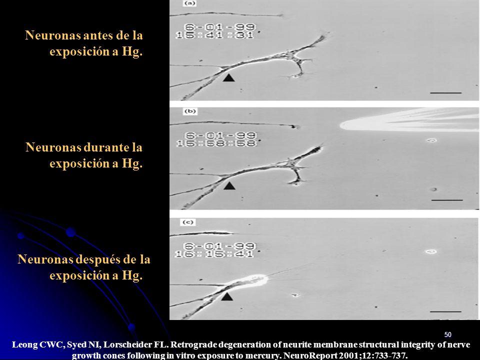 Neuronas antes de la exposición a Hg.