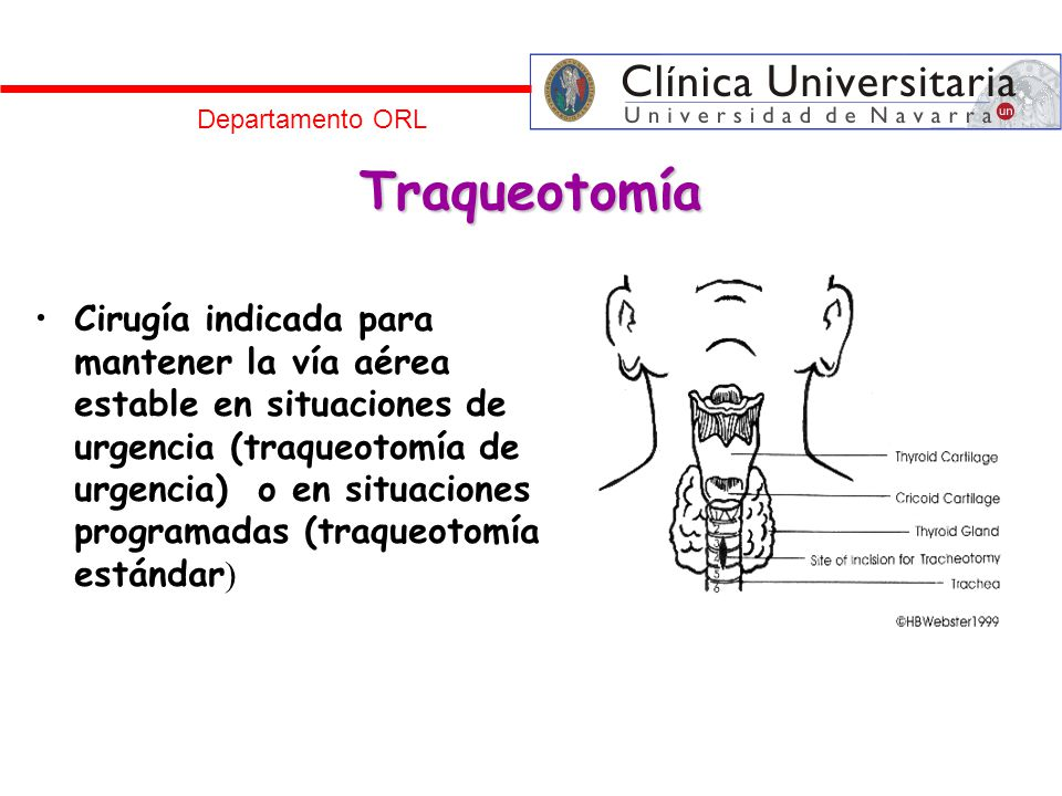 Departamento ORL Traqueotomía.