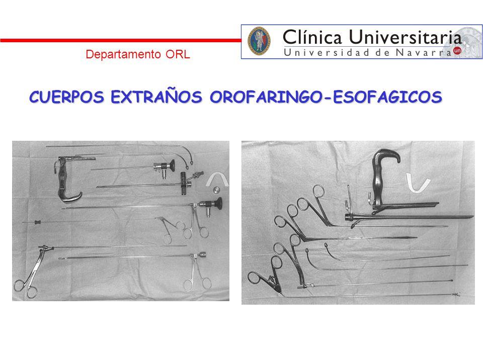 CUERPOS EXTRAÑOS OROFARINGO-ESOFAGICOS