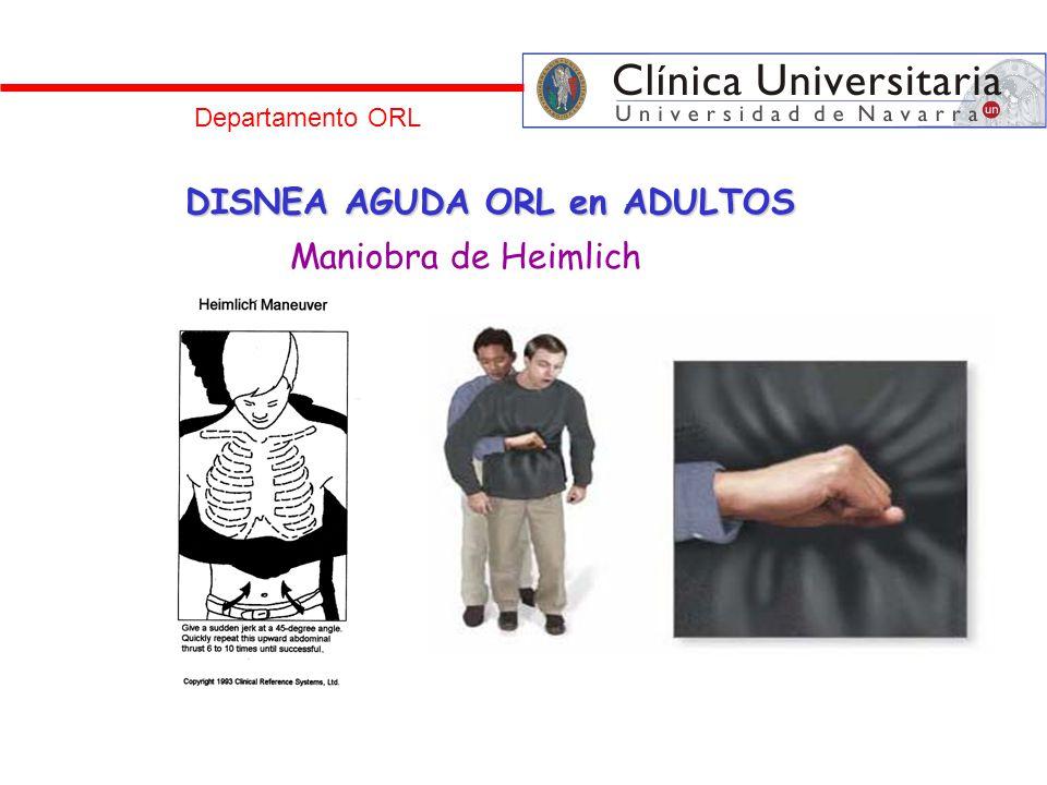 DISNEA AGUDA ORL en ADULTOS Maniobra de Heimlich