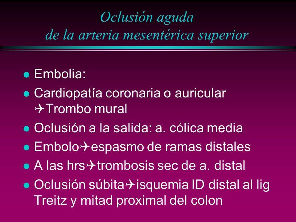Oclusión aguda de la arteria mesentérica superior
