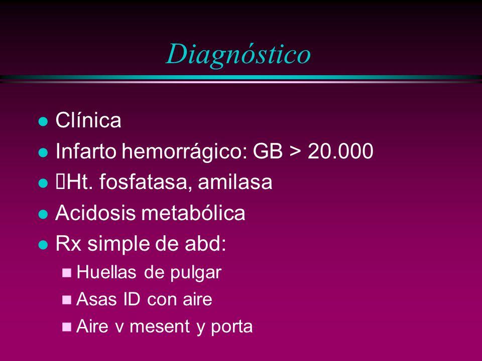 Diagnóstico Clínica Infarto hemorrágico: GB > 20.000