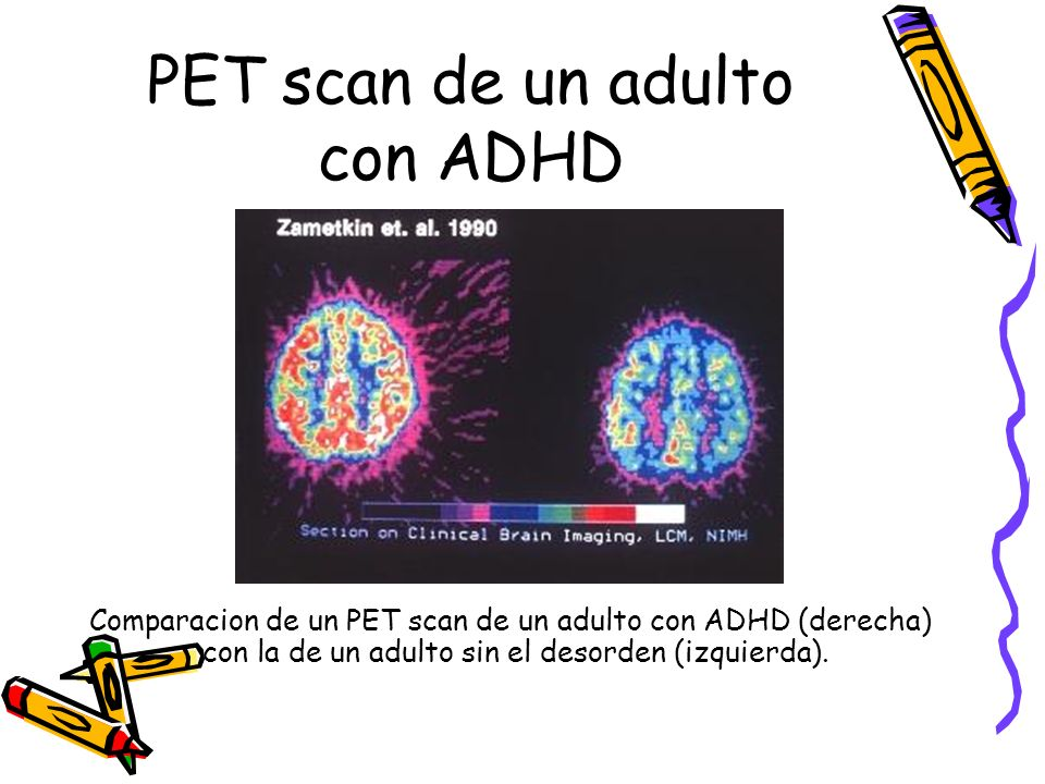 PET scan de un adulto con ADHD
