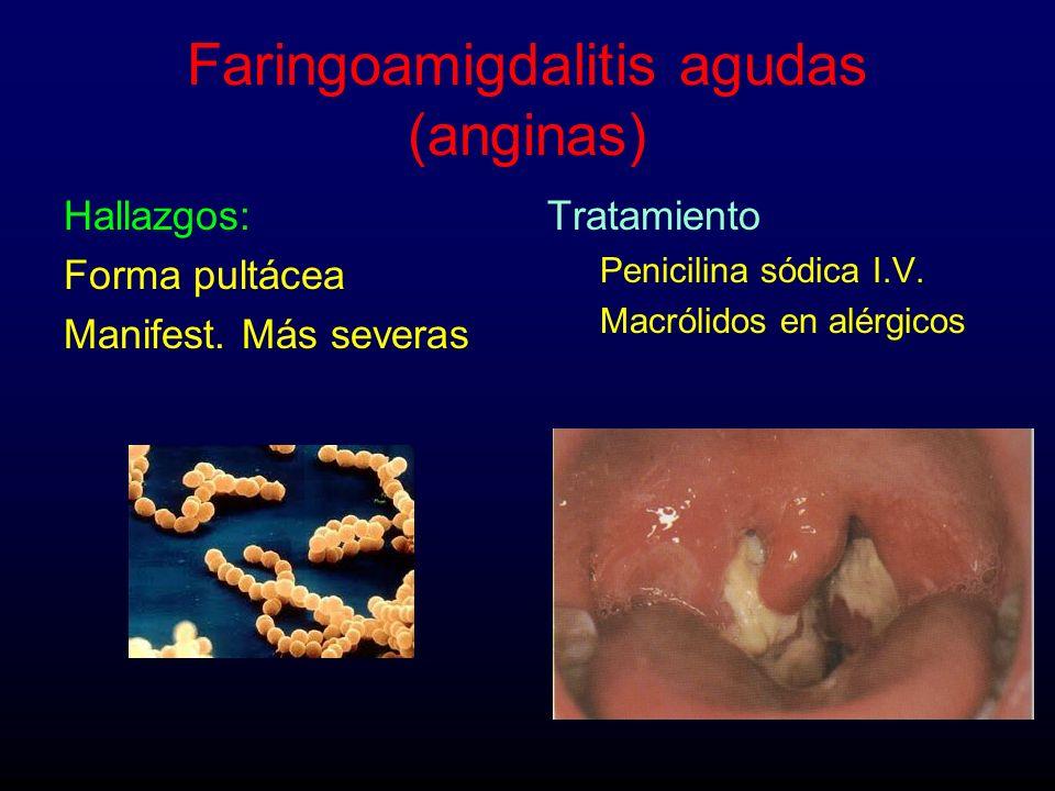 Faringoamigdalitis agudas (anginas)