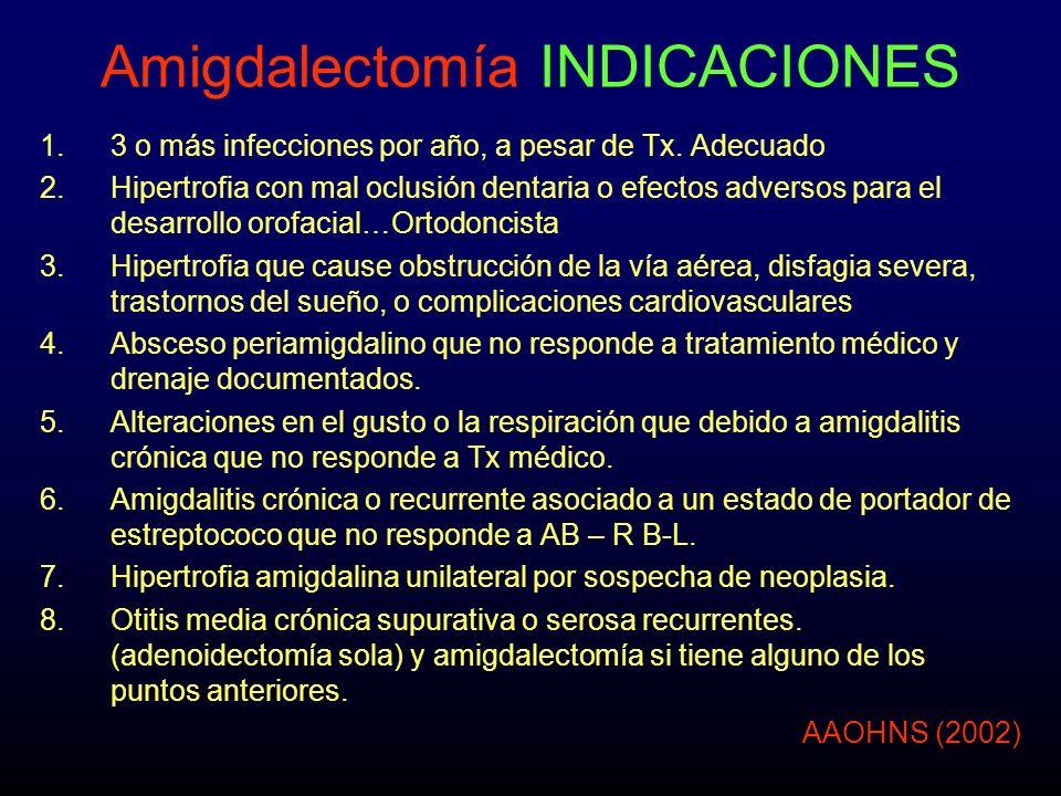 Amigdalectomía INDICACIONES