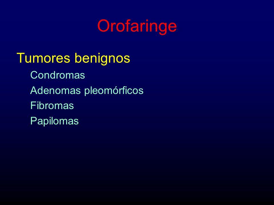 Orofaringe Tumores benignos Condromas Adenomas pleomórficos Fibromas
