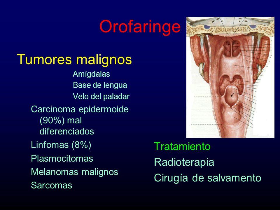 Orofaringe Tumores malignos Tratamiento Radioterapia