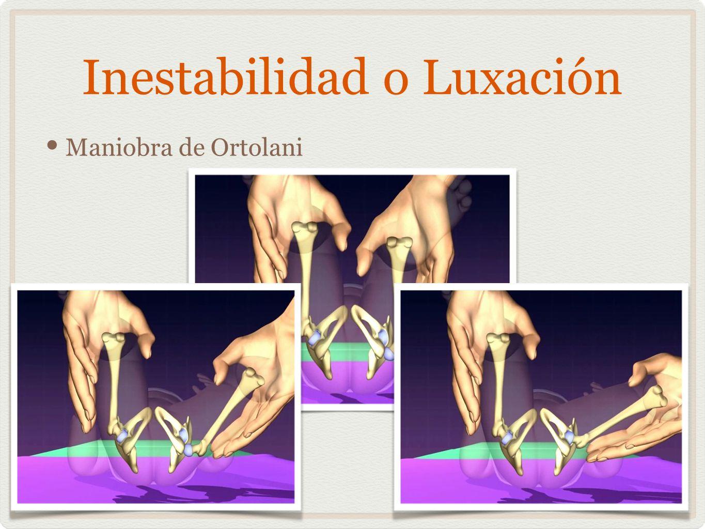 Inestabilidad o Luxación
