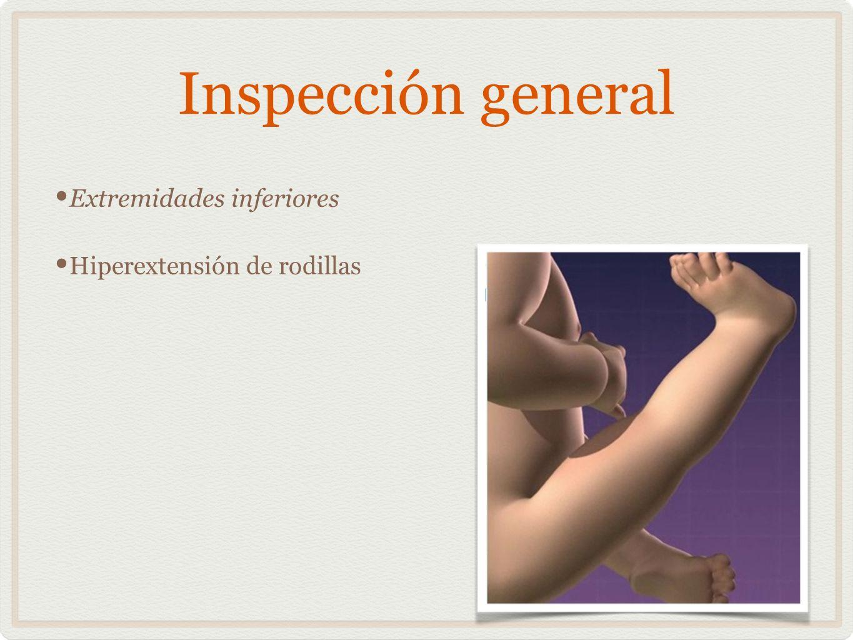 Inspección general Extremidades inferiores Hiperextensión de rodillas