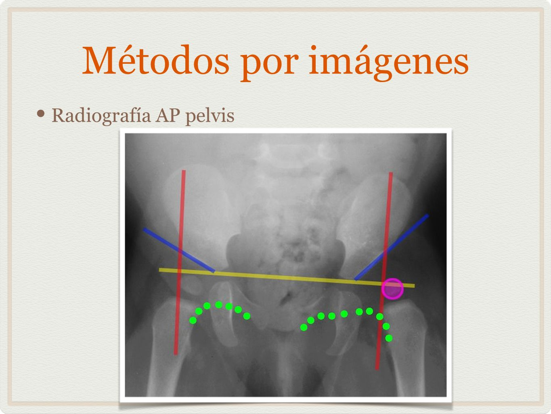 Métodos por imágenes Radiografía AP pelvis