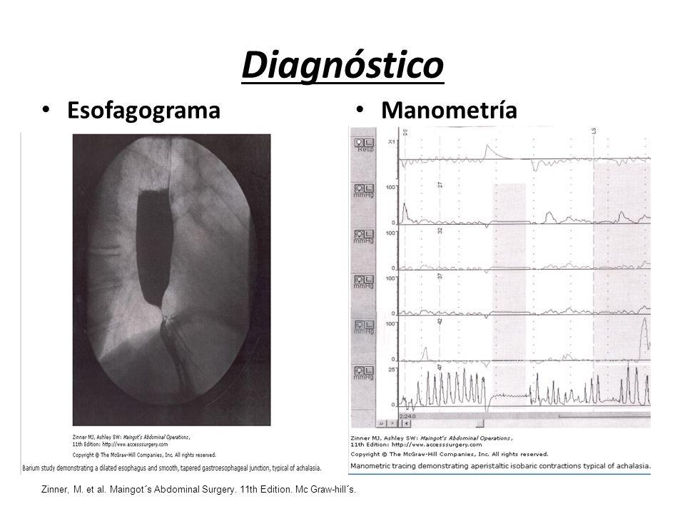Diagnóstico Esofagograma Manometría