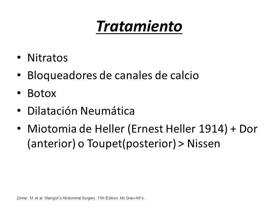 Tratamiento Nitratos Bloqueadores de canales de calcio Botox