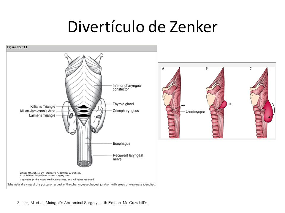 Divertículo de Zenker Zinner, M. et al. Maingot´s Abdominal Surgery. 11th Edition. Mc Graw-hill´s.