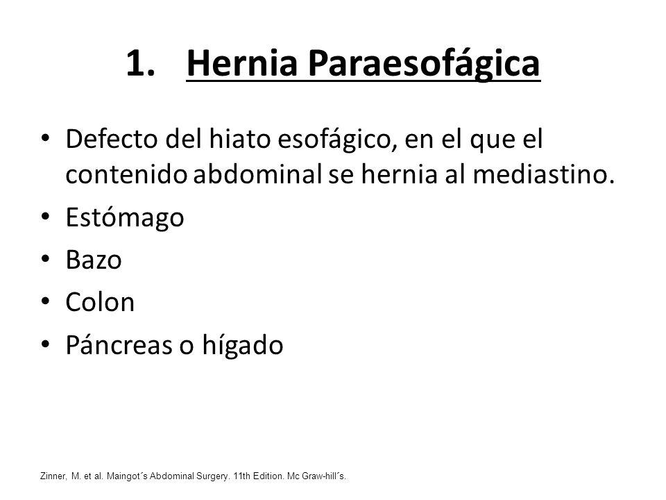 Hernia Paraesofágica Defecto del hiato esofágico, en el que el contenido abdominal se hernia al mediastino.