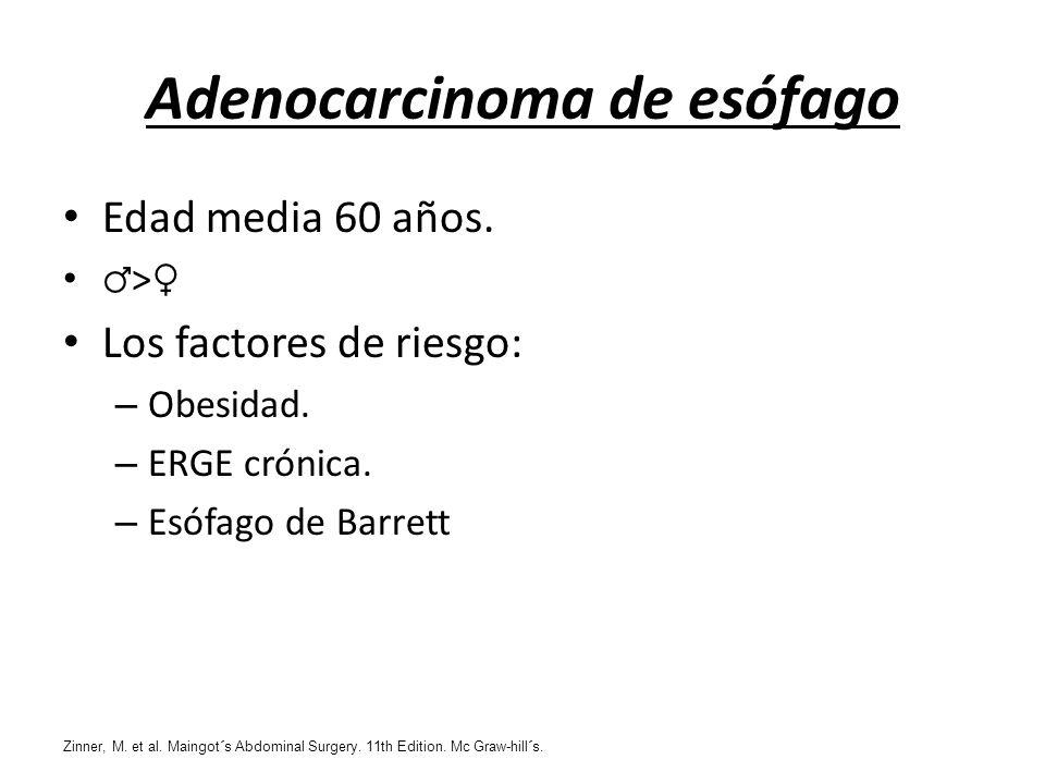 Adenocarcinoma de esófago