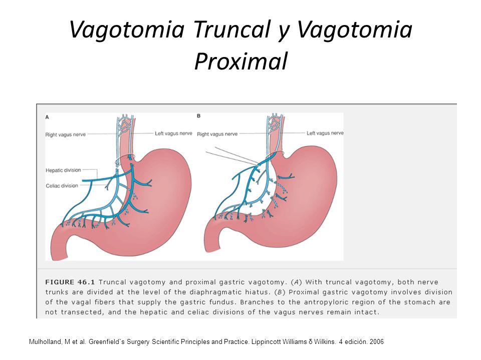 Vagotomia Truncal y Vagotomia Proximal