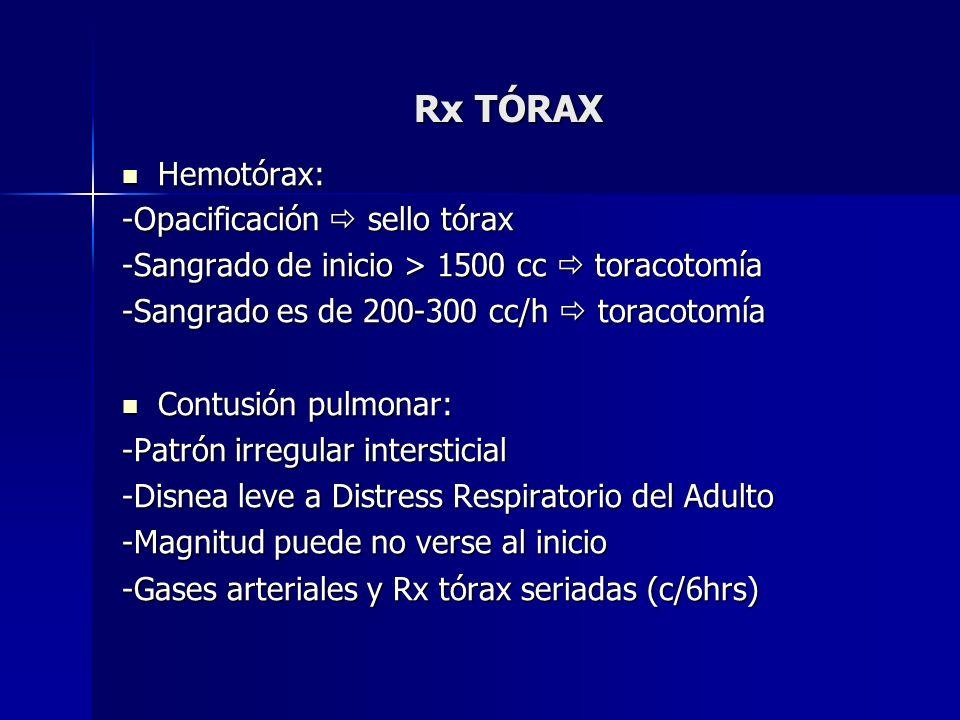 Rx TÓRAX Hemotórax: -Opacificación  sello tórax