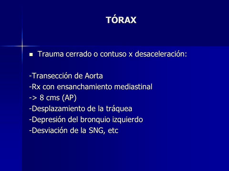 TÓRAX Trauma cerrado o contuso x desaceleración: -Transección de Aorta