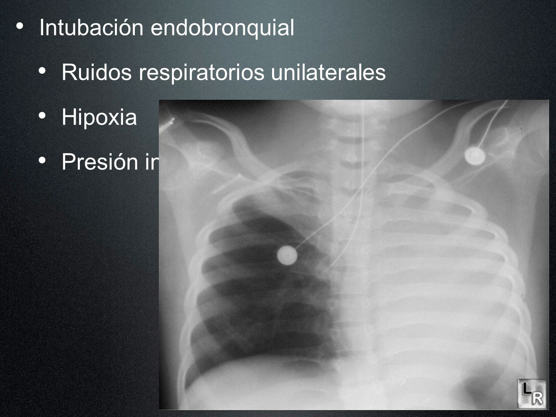 Intubación endobronquial