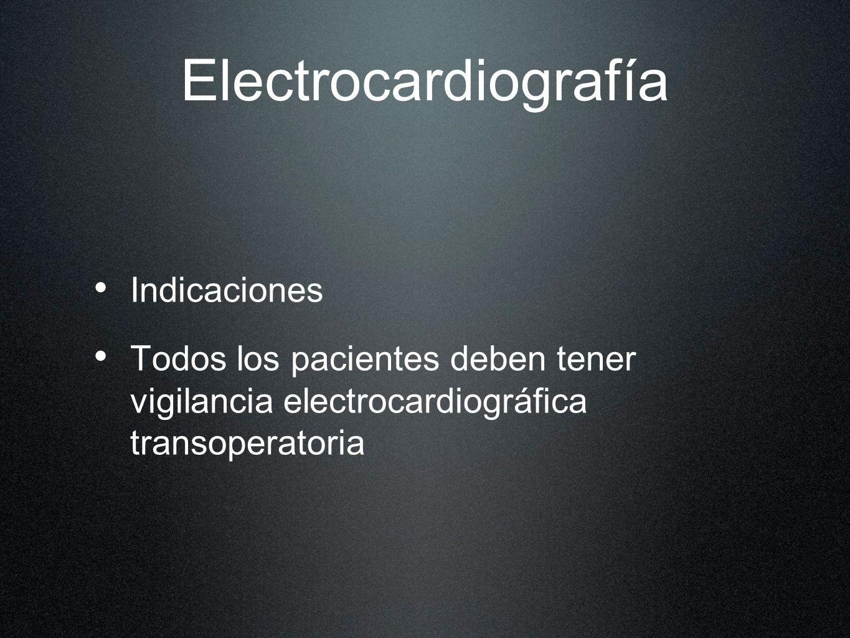 Electrocardiografía Indicaciones