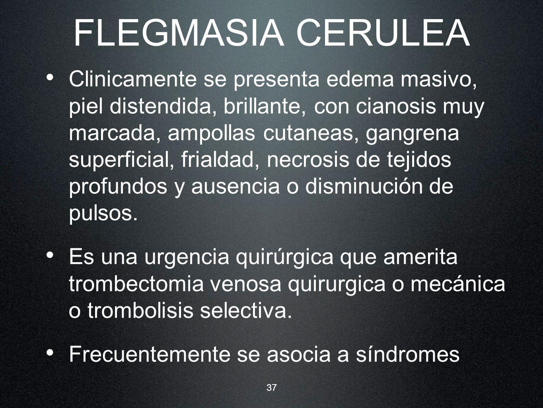 FLEGMASIA CERULEA