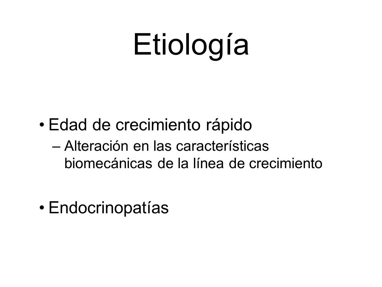 Etiología Edad de crecimiento rápido Endocrinopatías