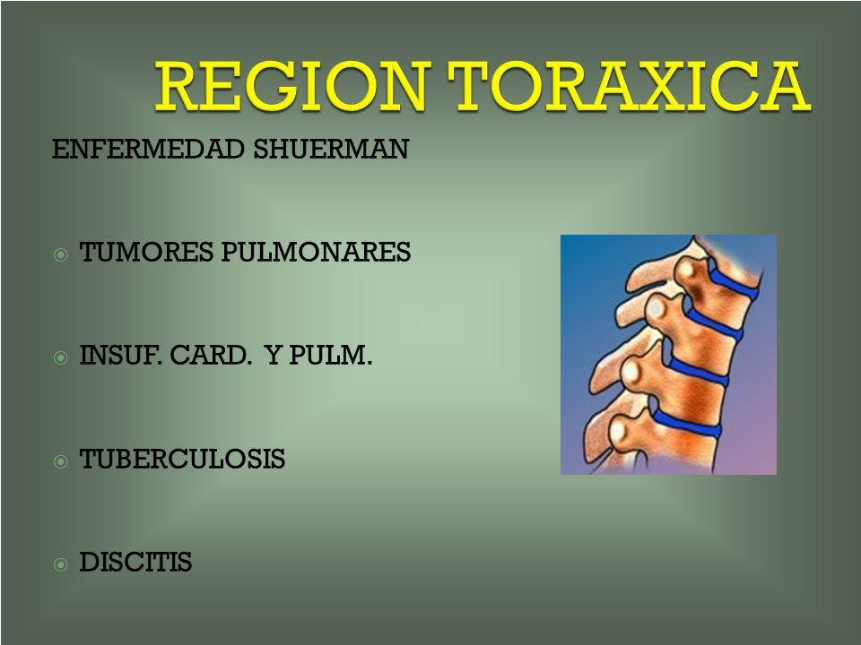 REGION TORAXICA ENFERMEDAD SHUERMAN TUMORES PULMONARES