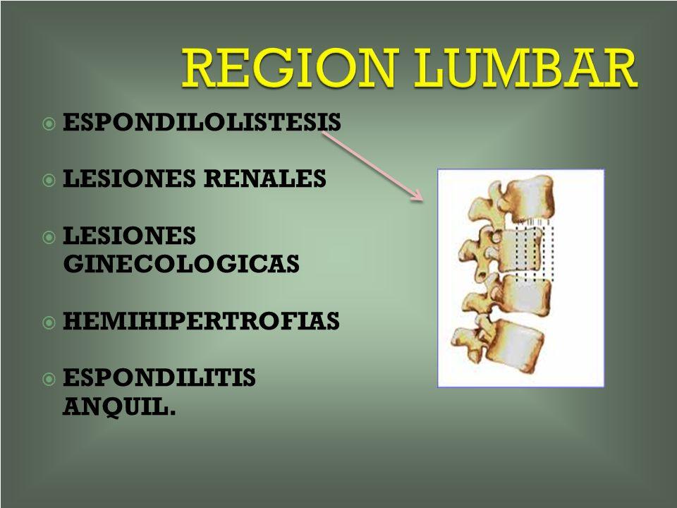 REGION LUMBAR ESPONDILOLISTESIS LESIONES RENALES