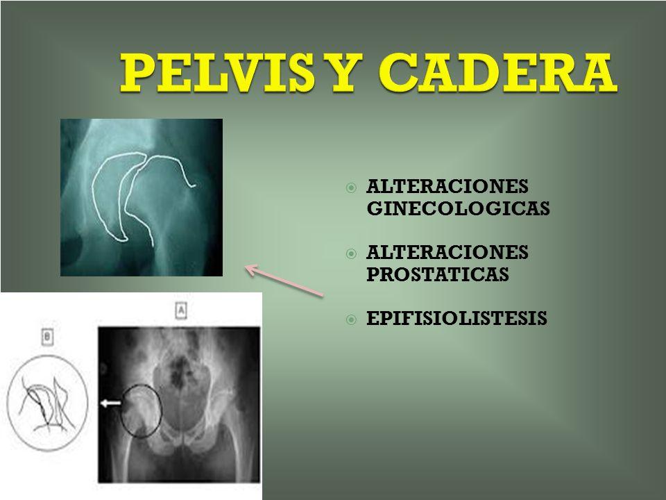 PELVIS Y CADERA ALTERACIONES GINECOLOGICAS ALTERACIONES PROSTATICAS