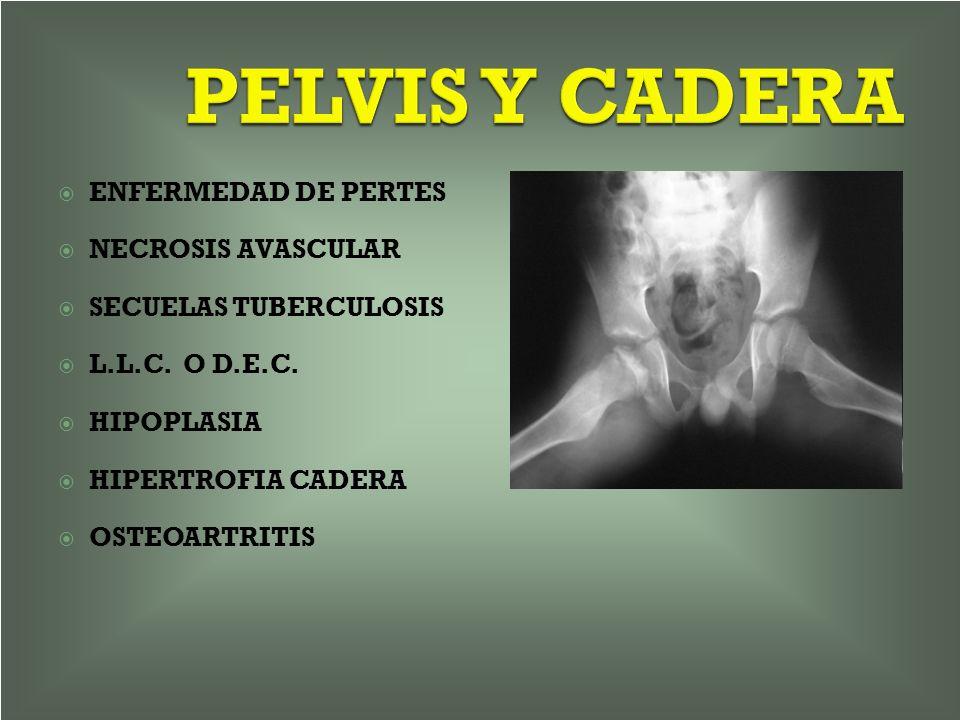 PELVIS Y CADERA ENFERMEDAD DE PERTES NECROSIS AVASCULAR