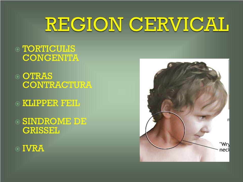REGION CERVICAL TORTICULIS CONGENITA OTRAS CONTRACTURA KLIPPER FEIL