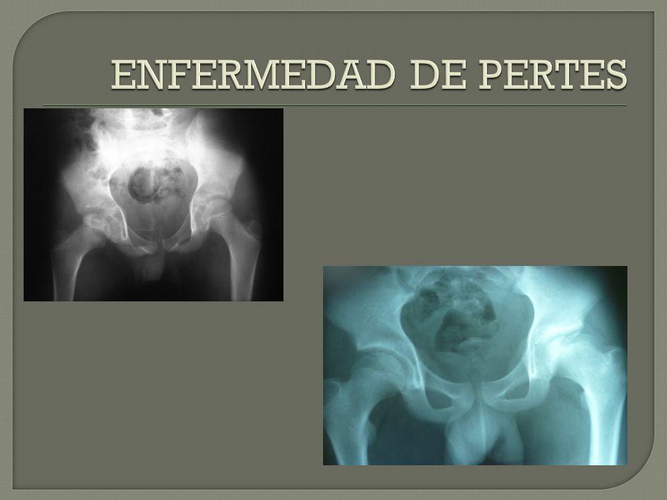 ENFERMEDAD DE PERTES