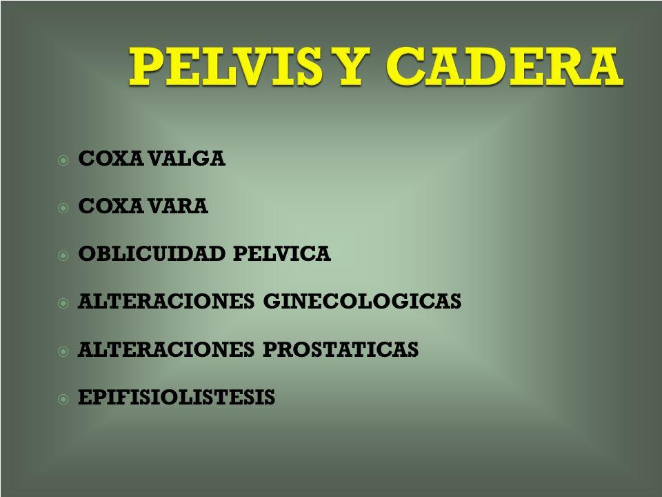 PELVIS Y CADERA COXA VALGA COXA VARA OBLICUIDAD PELVICA