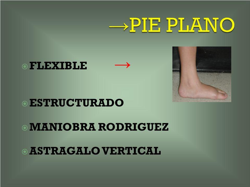 →PIE PLANO FLEXIBLE → ESTRUCTURADO MANIOBRA RODRIGUEZ