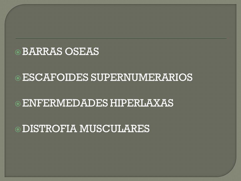 BARRAS OSEAS ESCAFOIDES SUPERNUMERARIOS ENFERMEDADES HIPERLAXAS DISTROFIA MUSCULARES